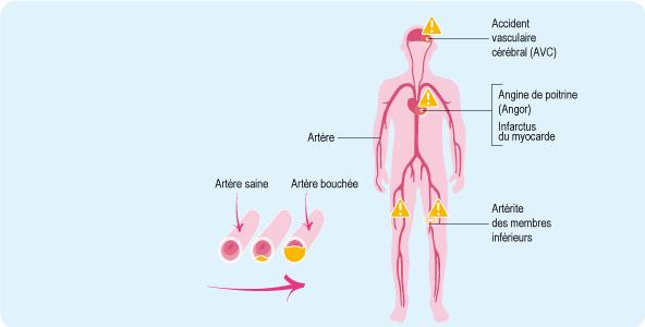 Les palpitations de coeur à la thrombose
